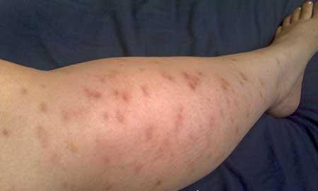 allergiki-sto-paidi-tis-1